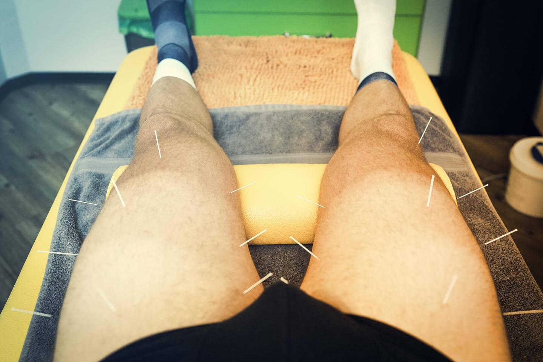 Wo Akupunkturnadeln platziert werden, um Gewicht zu verlieren