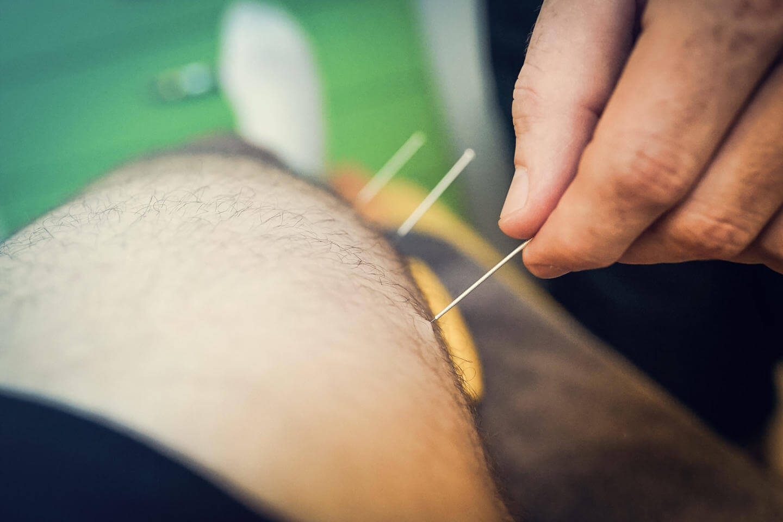 Entfernen der Dry Needling Nadeln